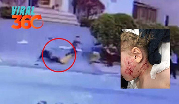 Pitbull ataca brutalmente a bebé de tres años