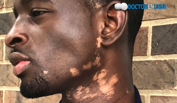 ¿Qué es el vitiligo?
