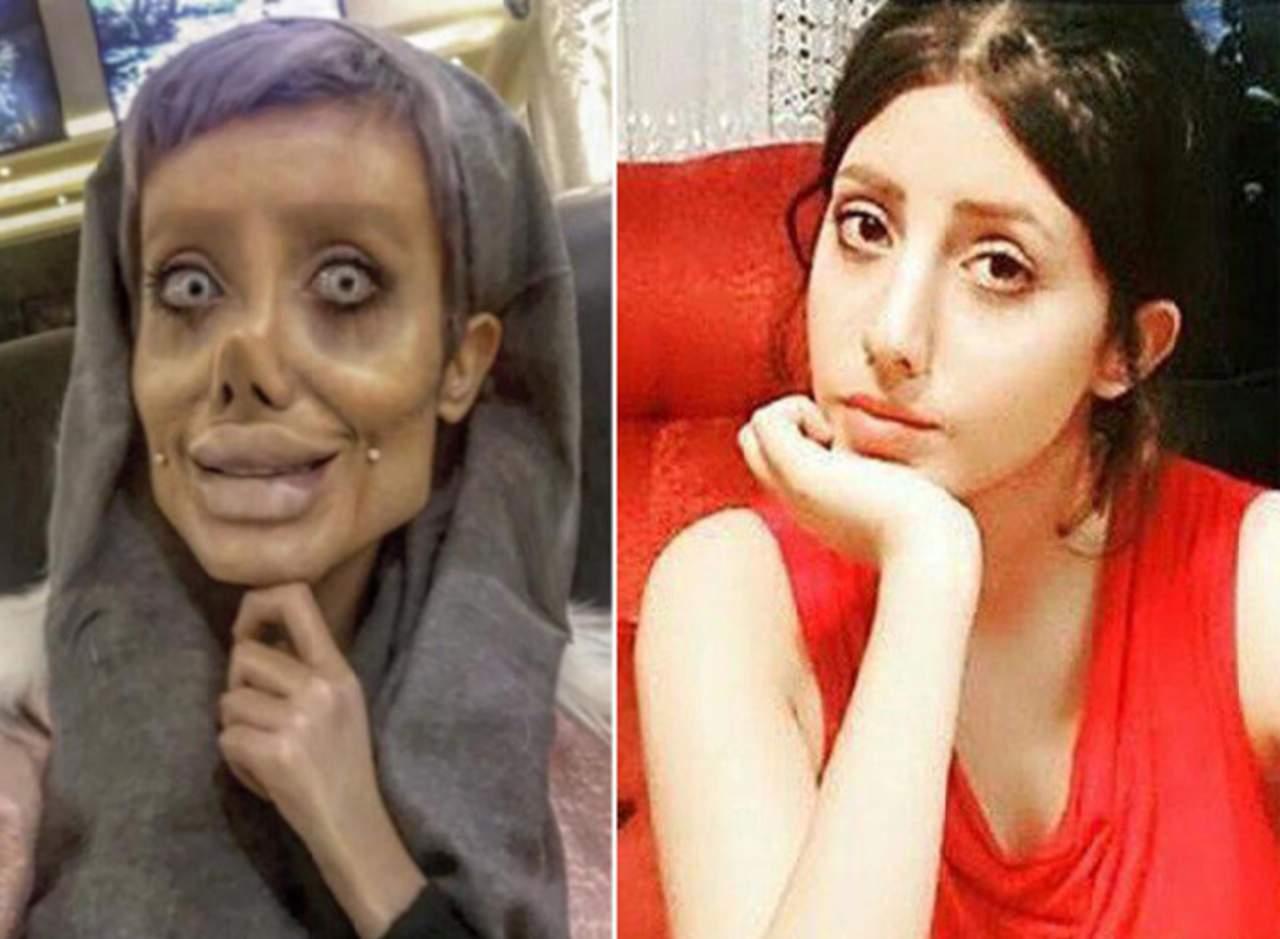 Sahar Tabar No Photoshop >> La verdad sobre la chica que dijo hacerse 50 cirugías para parecerse a Jolie