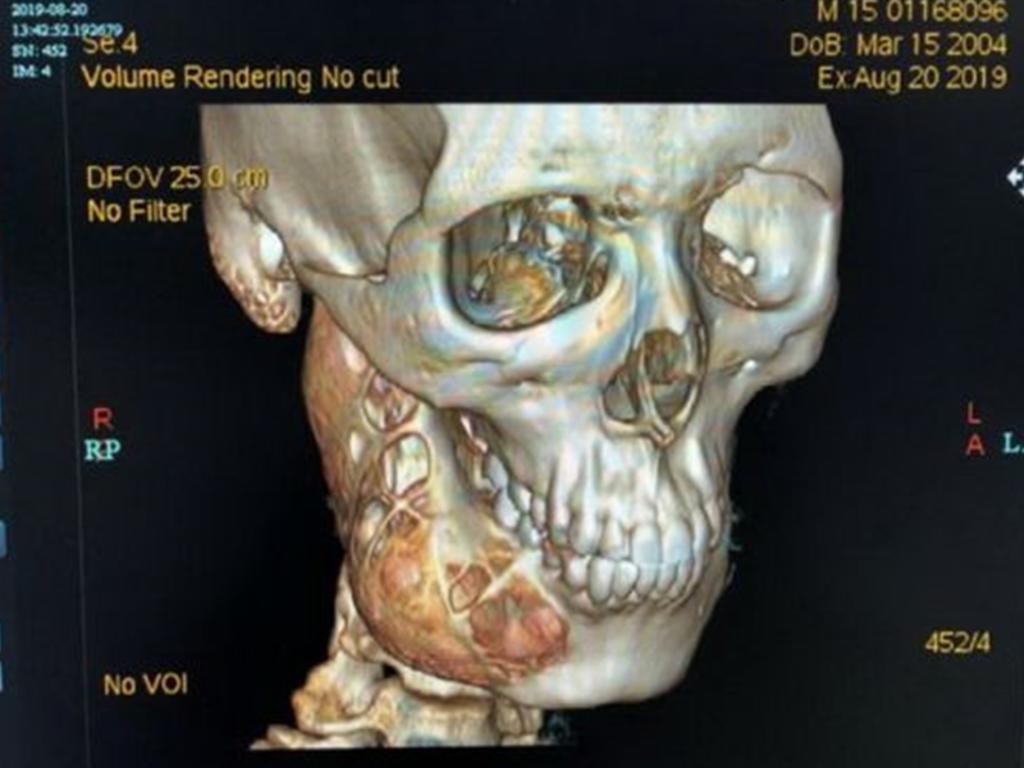 Un año con dolor de muelas y termina con agujero en la mandíbula. Noticias en tiempo real