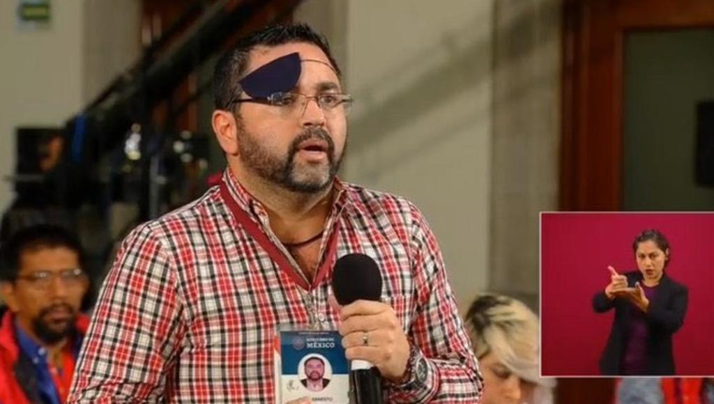 Tunden en redes a Paul Velázquez tras descubrir su ojo sin parche, El Siglo  de Torreón