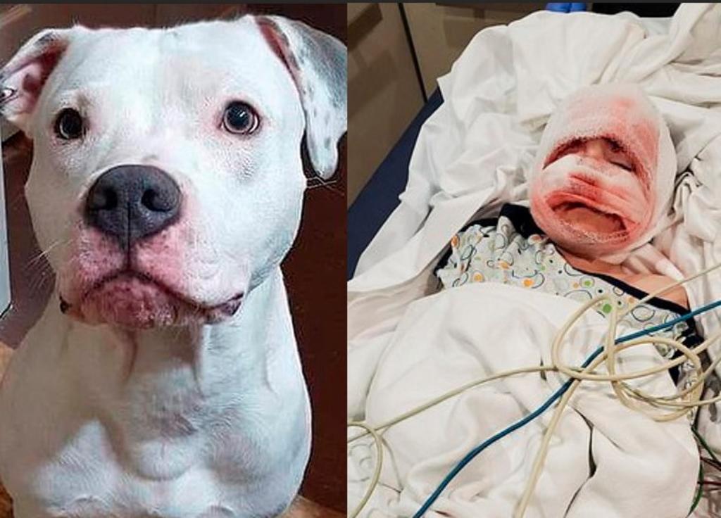 Niño de 6 años es atacado por su Pit Bull y queda con cicatrices de por vida. Noticias en tiempo real