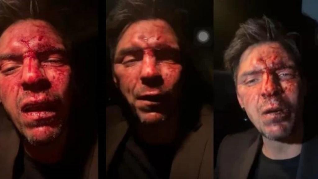 Hijo de Arturo Montiel se pronuncia sobre golpiza a César D'Alessio, El Siglo de Torreón