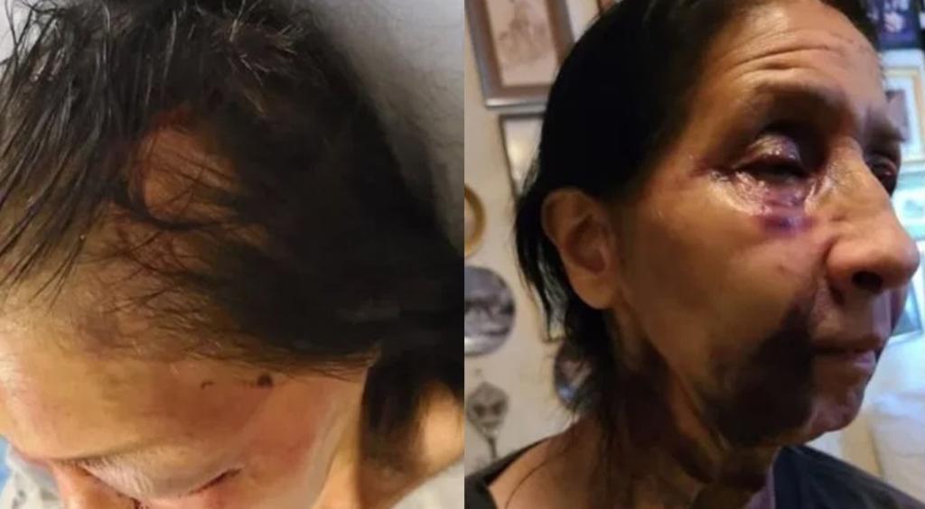 Mujer mexicana es golpeada en EUA por afroamericana; pensó que era asiática. Noticias en tiempo real